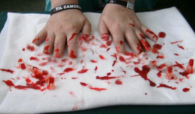 Удаление когтей у кошек – это не косметическая процедура, не «педикюр», а серьёзная операция, в ходе которой ампутируются фаланги пальцев